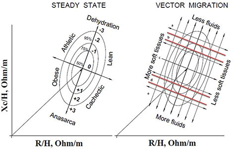 View of Bioelectrical impedance vector analysis and phase angle in